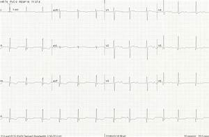 ECG changes with hypokalaemia LITFL ECG Library