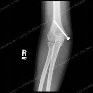 Elbow Fractures in Children: An Overview - HSS.edu