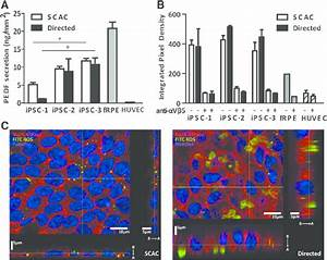 Induced Pluripotent Stem Cell-Derived Retinal Pigmented ...