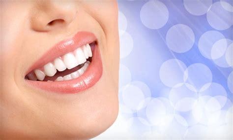 Opulence Teeth Whitening 20 by In Home Teeth Whitening Icing Teeth Whitening Groupon