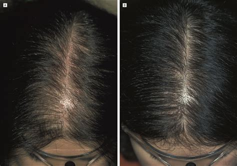Finasteride Treatment of Female Pattern Hair Loss | JAMA