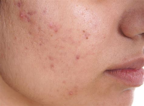 Acne How To Treat It