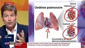 Qu Est Ce Qu Un Couple : mort de charles aznavour qu 39 est ce qu 39 un d me pulmonaire lci ~ Medecine-chirurgie-esthetiques.com Avis de Voitures