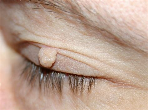 Fibroma Pendulans Acrochordon Fibroma Molle Fibroma