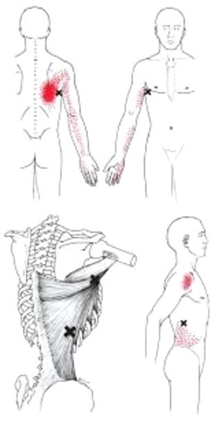 muscle knots  trigger points