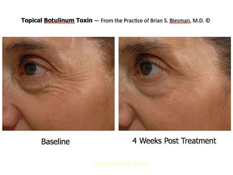 topical botox toxin  botulinum toxin facial