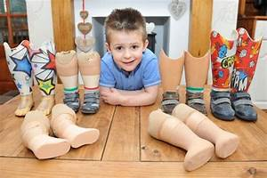 4YO BOY WITH NO LEGS IS FUNDRAISING TO PAY FOR NEW ...