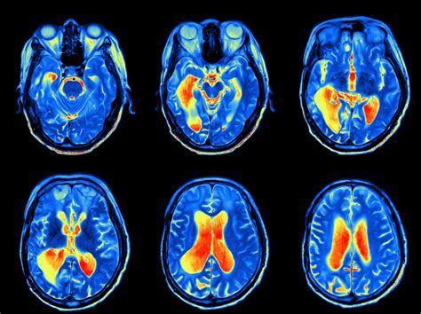 fmri  uncover cognitive dysfunction  systemic