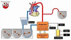 Cardiopulmonary Bypass  Cpb  Circuit