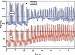 4 Pulse Oximeter Waveform Response To Surgical Stimulation