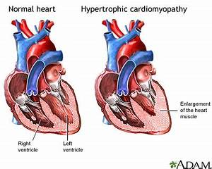 Hypertrophic Cardiomyopathy   Conditions & Treatments ...