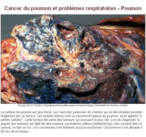 cancer du poumon