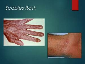 Scabies Treatment - Bing images
