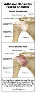 Adhesive Capsulitis Refers To A Build Up Of Scar Tissue In