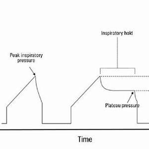 -Schematic representation of capnogram tracings under ...