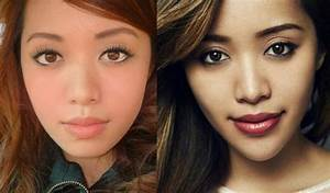 Michelle Phan Plastic Surgery Chin Implants