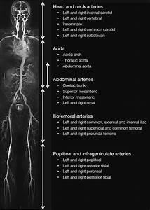 Whole Body Angiogram With Stations And Vascular