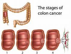 Staging Colorectal Can...Colon Cancer Stages And Treatment