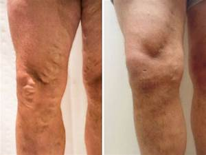 Varicose Vein removal Bristol, Thread Vein treatment ...