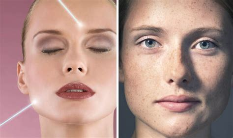 what is the best laser for sun damaged skin express co uk