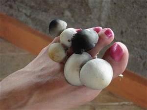 Паховый грибок мази для лечения