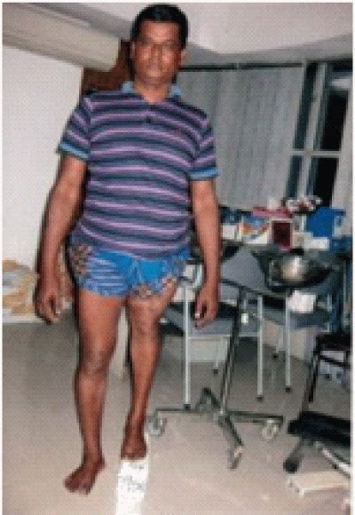 correction  leg length discrepancies  ilizarov technique