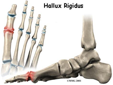 hallux range of motion hallux rigidus orthogate