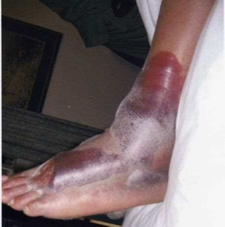 fracture blisters  western journal  emergency medicine