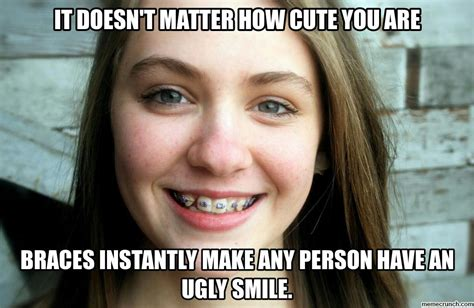 Braces Meme Girl - braces are ugly