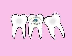 Douleurs Dents De Sagesse : douleurs de pouss es des dents de sagesse hom opathie pratique academy des savoirs ~ Maxctalentgroup.com Avis de Voitures