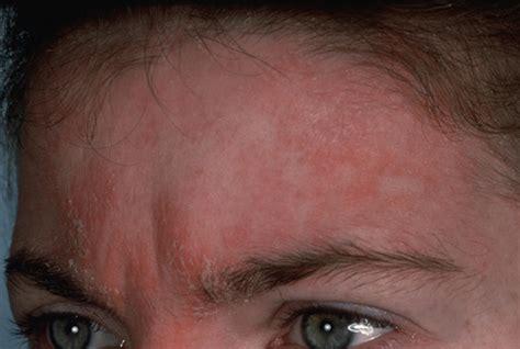 neurodermitis atopische dermatitis atopisches ekzem