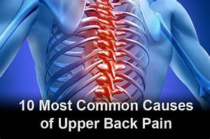 10 Most Common Causes Of Upper Back Pain