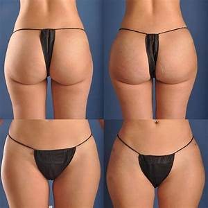 Unlike A Butt Implant  A Hip Implant Is Used To Give Women The Appearance Of An Hourglass Shape