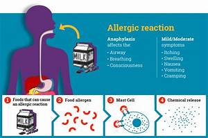Anaphylaxis Info For Healthcare Professionals