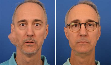 Facial Paralysis After Surgery