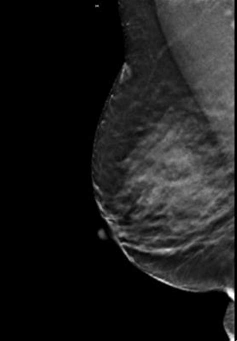 Dense Breast Tissue: Supplemental Imaging | Imaging