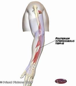 brachial plexus pain treatment