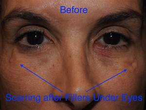 parts of eyelid under eye filler adam scheiner md