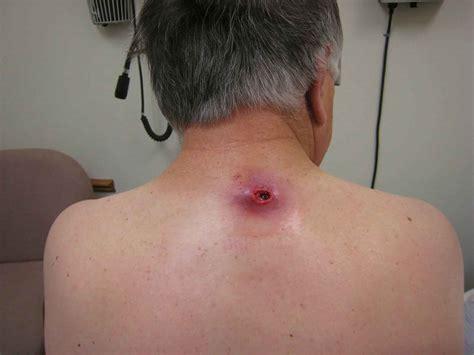 Sebaceous Cyst Causes Symptoms Treatment Sebaceous Cyst