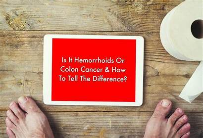 Hemorrhoids Cancer Colon Difference Tell Blood Rectal