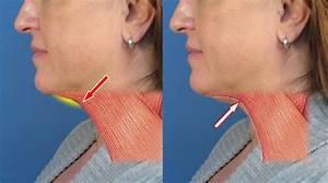 Case Study Of Neck Liposuction Plastysmaplasty In San