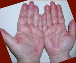 hand foot syndrome cancer drugs