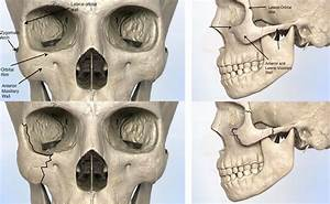 Cheekbone Anatomy