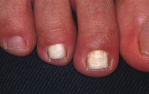 white superficial onychomycosis epidemiological clinical