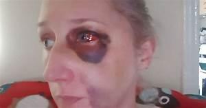 Brave domestic violence victim shares image of brutal ...  Domestic