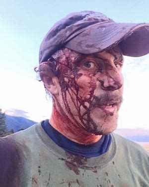 montana man details   survived grizzly bear attack