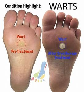 Podiatrist Treatment For Foot Warts Or Plantar Verrucae