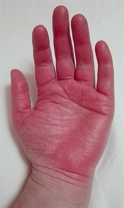 Fileerythromelalgia In Hands Wikimedia Commons