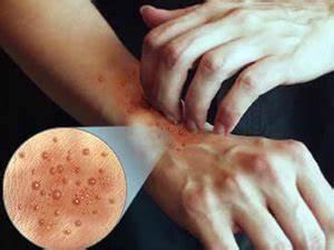 Грибок кожи на теле лечение мазь