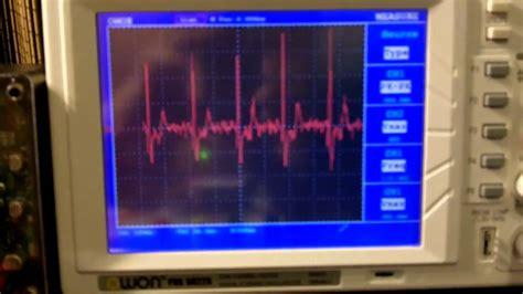 arduino ecg ekg heart rate monitor circuit prototype youtube